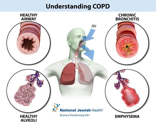 The Impact of COPD on Your Lungs
