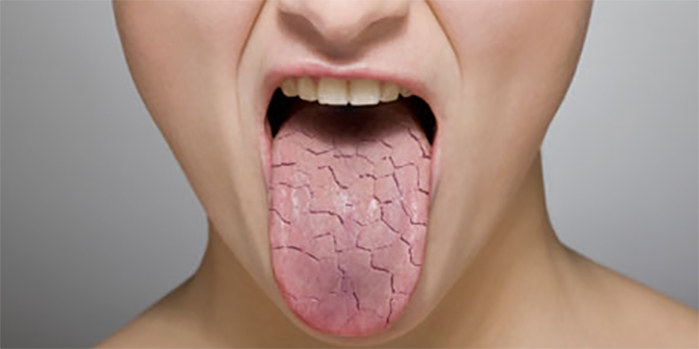 CBD Oil Side Effect: Dry Mouth
