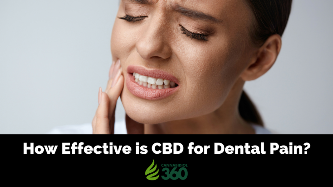 CBD in Dentistry