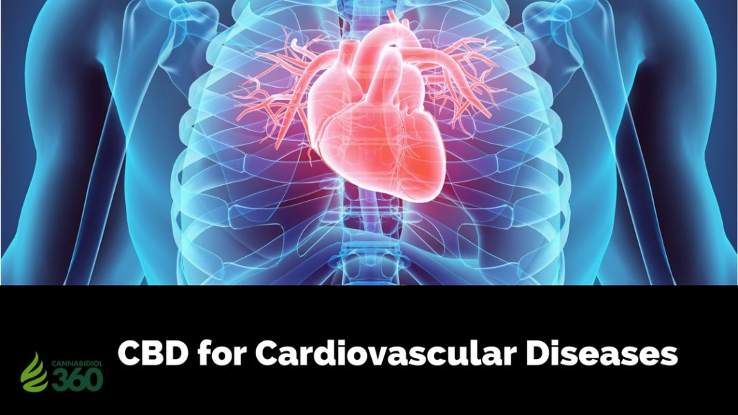 Benefits of CBD for Cardiovascular Diseases