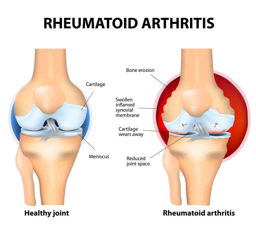 Treating Inflammatory Arthritis with CBD