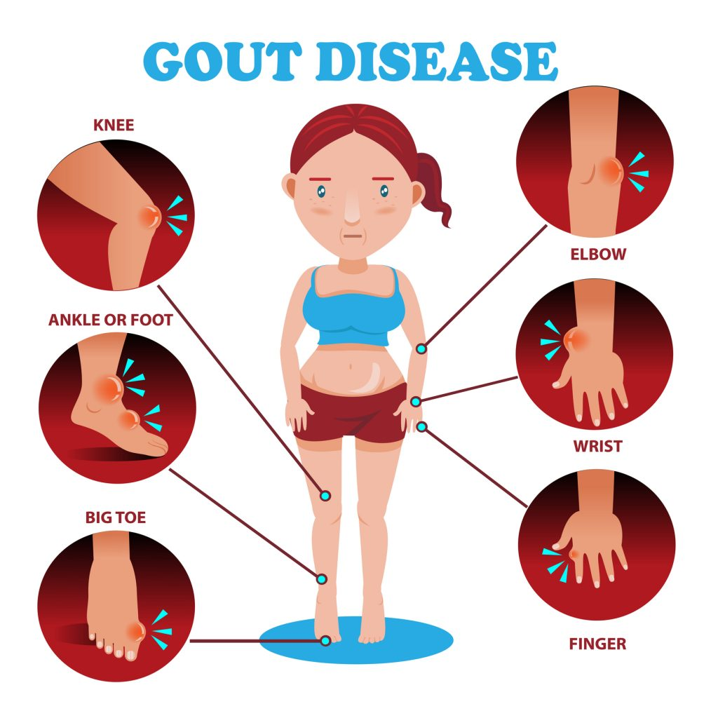 Treating Gout with CBD