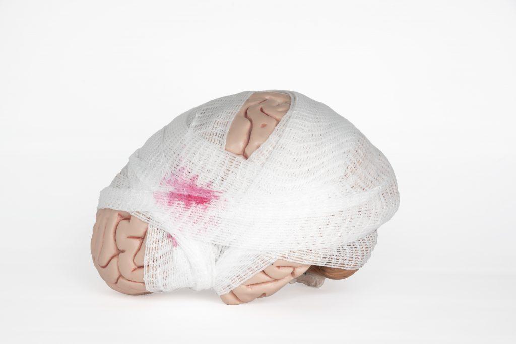 Current Concussion Treatments